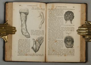 PORNEIOPATHOLOGY: A POPULAR TREATISE ON VENEREAL AND OTHER DISEASES